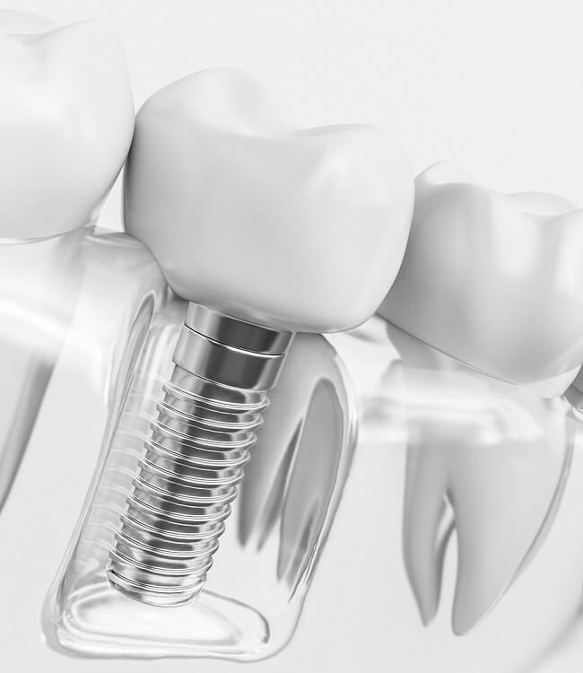 Are implants the right solution for missing teeth