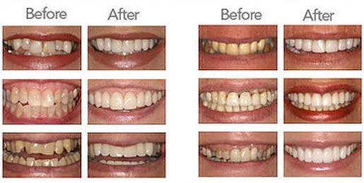"Which method of ""teeth whitening"" is best for you?"