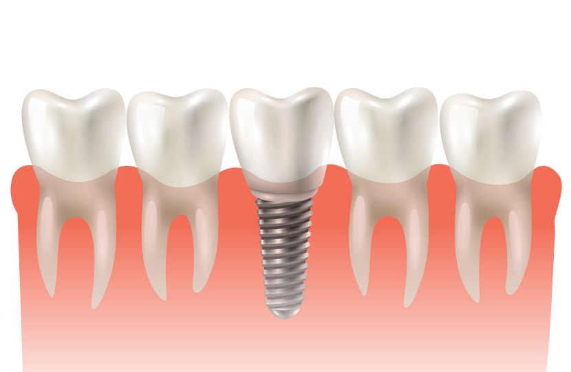 5 Amazing Benefits of Dental Implants