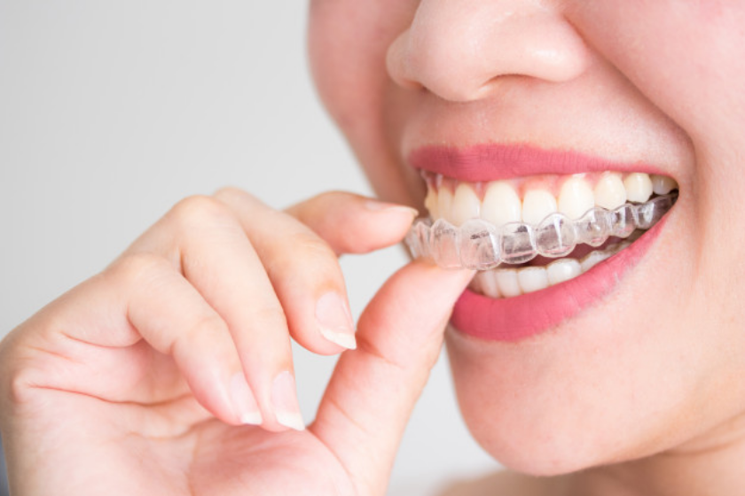 Invisalign – The Choice for a Straighter Smile in Adult Years