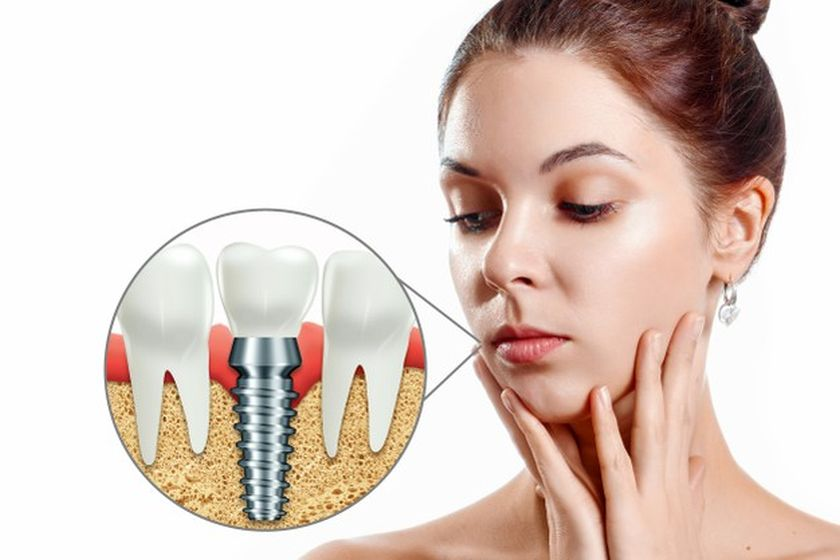 Dental Implants Cost in Rancho Cucamonga